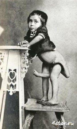 Цирк уродов